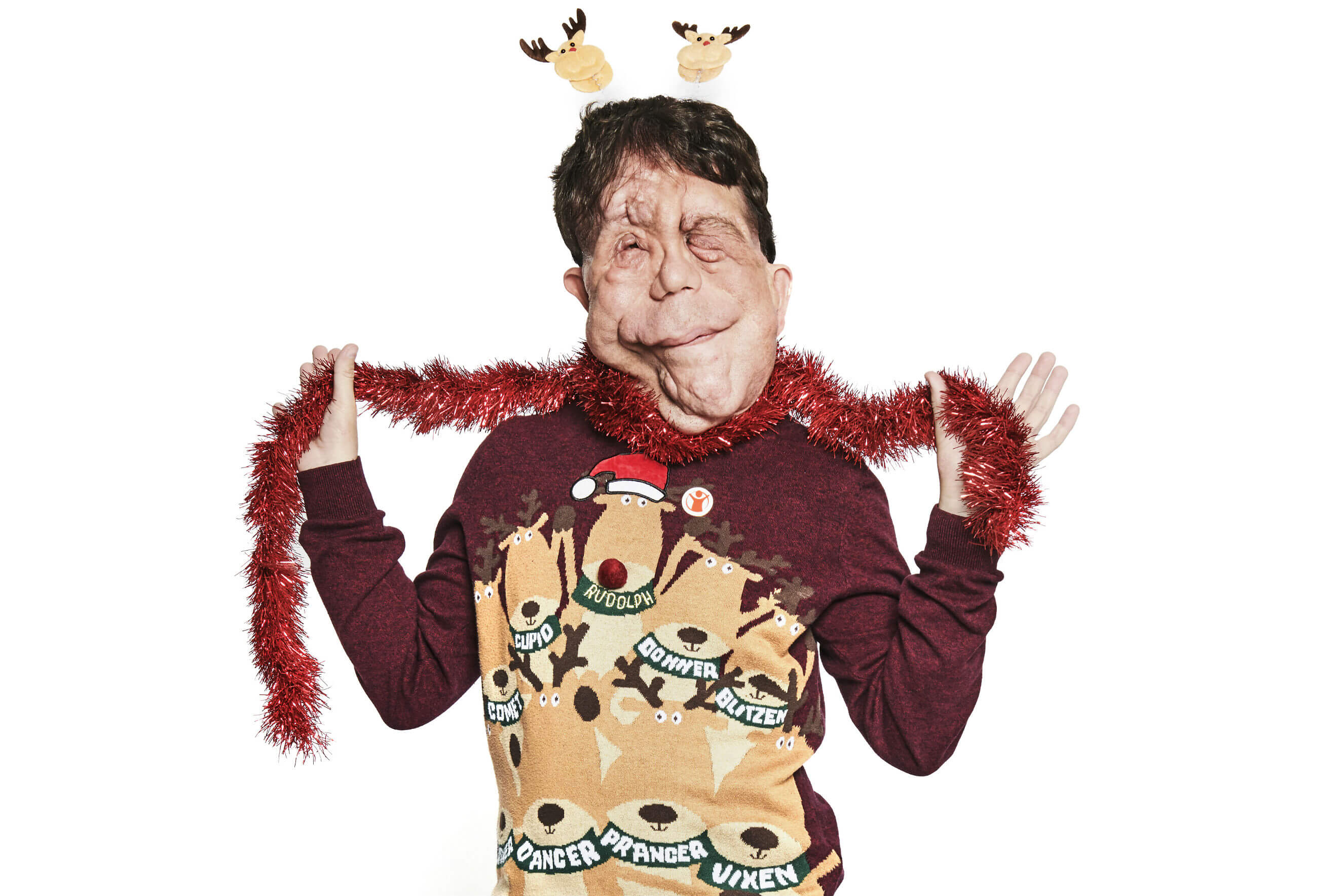 Adam Pearson puts on his Christmas Jumper and tinsel for Save the Children's Christmas Jumper Day.
