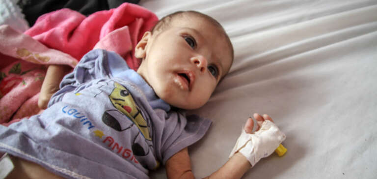 Child suffering from malnutrition in Yemen,