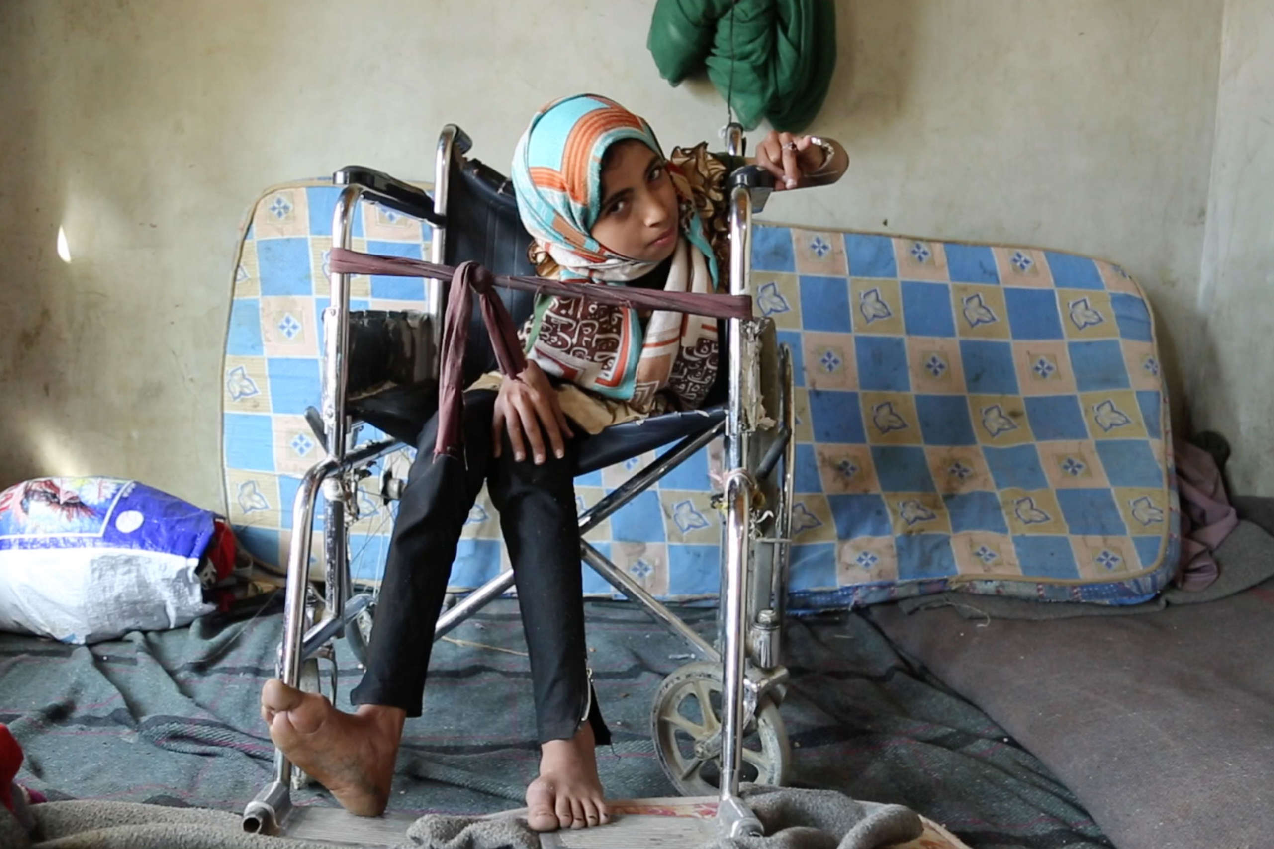 Noran,13, was injured in an airstrike in Yemen. She fell and twisted her back.